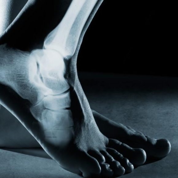 Tips To Take Care of Ankle Joint